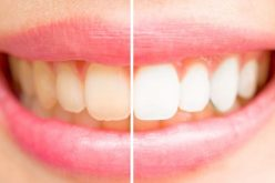 Steps to A Great Smile